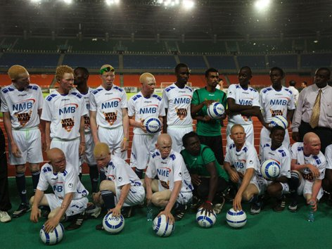 Athlete Spotlight: TANZANIA ALBINO UNITED FOOTBALL TEAM