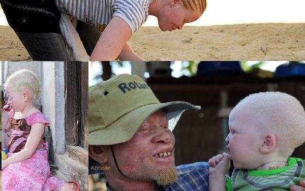 UN To Send Two Experts To Investigate Albino Killings…